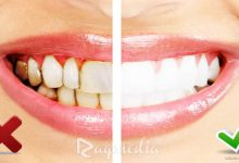 تبييض-الأسنان