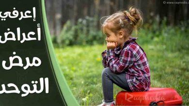 signs-of-autism-Autism (Disease Or Medical Condition), Health (Industry), التوحد, انواع التوحد, اسباب التوحد, سوبر ماما, طبيب, اخصائية الامومة, super mama, نصائح, رعاية الطفل, علاقتك باولادك, تربية إيجابية, نصائح لتربية, kuwait, saudi, tunisie, morocco, تربية الطفل, كيف تربي اطفالك, الحياة السعيدة, الذرية الصالحة Health (Industry), child Psychiatry,-اعراض-التوحد-عند-الاطفال